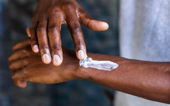 Moufense – Malaria protection for all